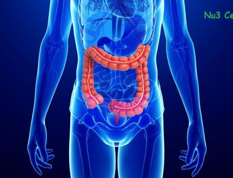 Ishrana kod ulceroznog kolitisa